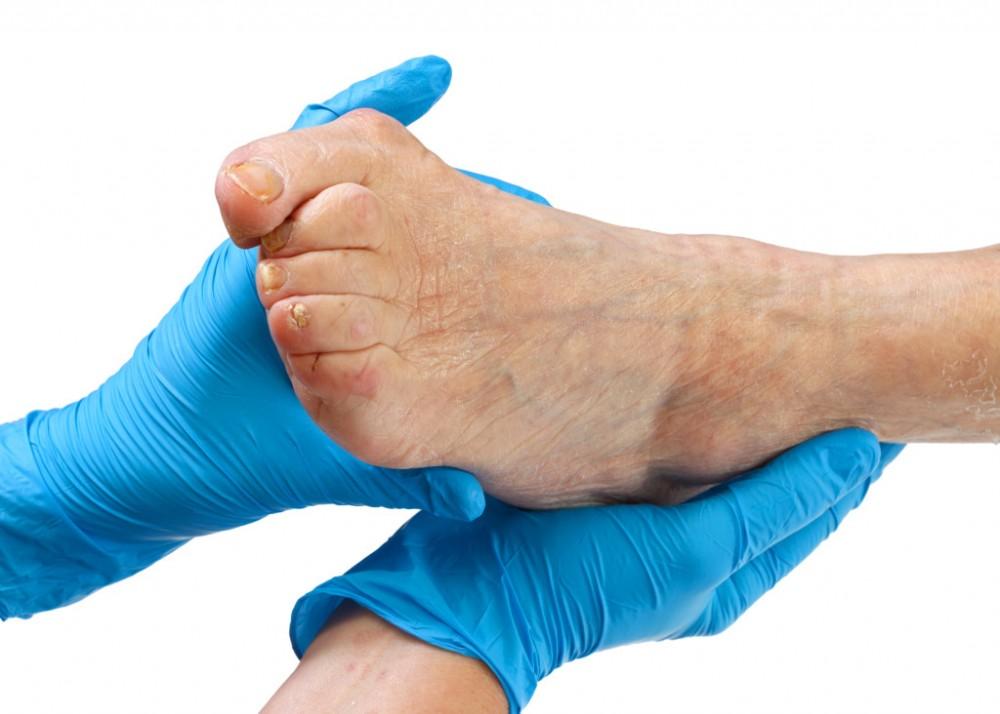 fáj a kéz és a láb ujjai)